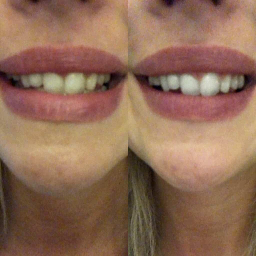 Das Ergebnis einer Zahnaufhellung mittels Whitesensation