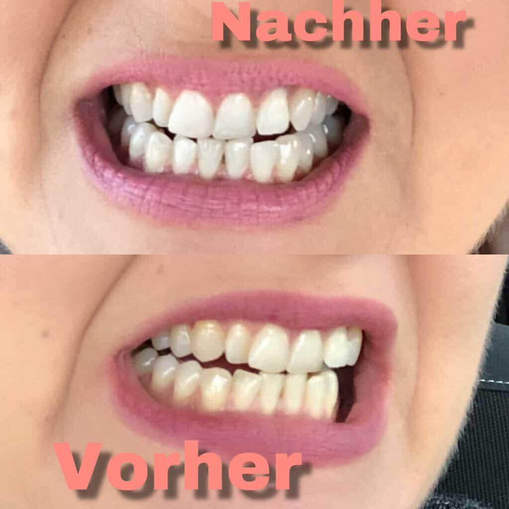 Eine Zahnaufhellung mit Whitesensation kann zu deutlich helleren Zähnen führen